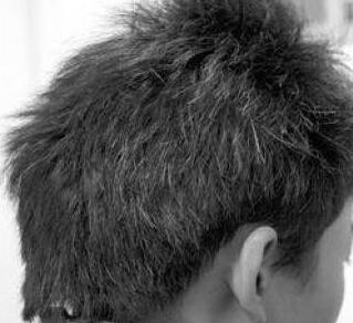 青少年长白头发这样做可有效防止