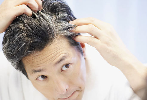 防治白发技巧小常识!