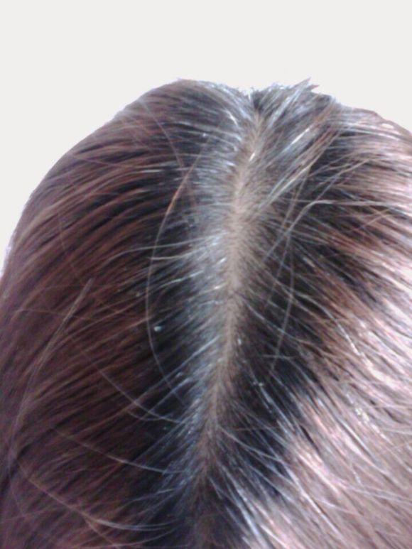 少年白发一般与这些因素有关